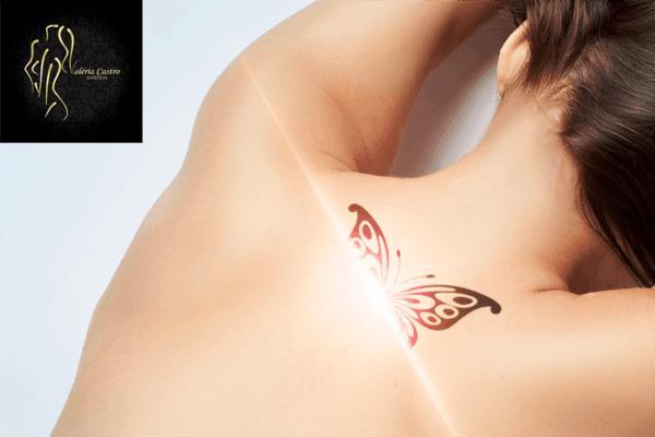 Remoção de Tatto de 10 cm por 10 cm na Clínica Lu Gonçalves. De R$ 900,00 por apenas R$ 250,00.