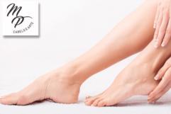 SPA PARA SEUS PÉS! Tratamento eficaz contra rachaduras no Estúdio de Estética Milene Pitoli. Por apenas R$ 34,00.