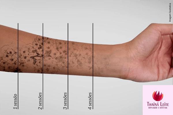 1 sessão de remoção de micropigmentação e tatuagem na Thaina Leite Depilação e Estética por apenas R$ 89,90.