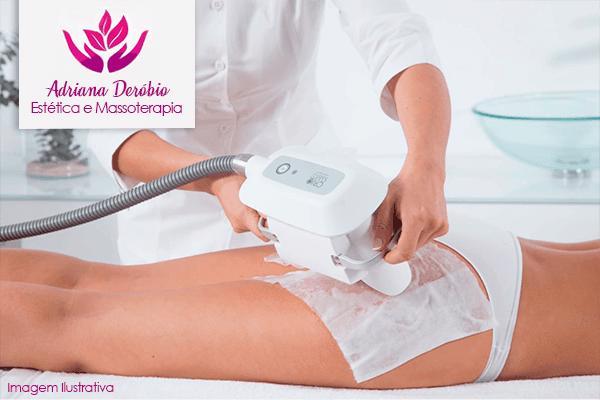 Massagem Modeladora + Fortalecimento Muscular + Lipoescultura Gessada na Adriana Deróbio, de 100,00 por 49,90.